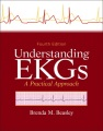 Product Understanding EKGs