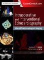 Product Intraoperative and Interventional Echocardiography