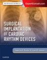 Product Surgical Implantation of Cardiac Rhythm Devices