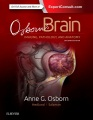 Product Osborn's Brain