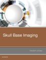 Product Skull Base Imaging