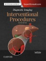 Product Interventional Procedures