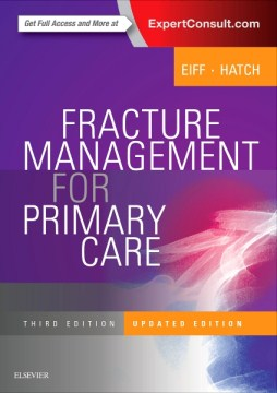 Product Fracture Management for Primary Care