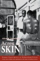 Product Acres of Skin