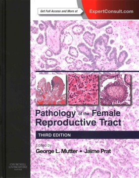 Product Pathology of the Female Reproductive Tract