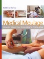 Product Medical Moulage