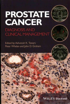 Product Prostate Cancer: Diagnosis and Clinical Management