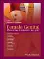 Product Female Genital Plastic and Cosmetic Surgery
