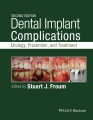Product Dental Implant Complications