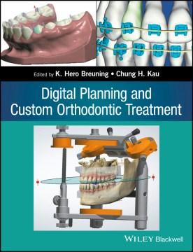 Product Digital Planning and Custom Orthodontic Treatment