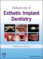 Product Advances in Esthetic Implant Dentistry