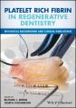 Product Platelet Rich Fibrin in Regenerative Dentistry