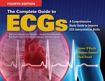 Product Complete Guide to ECG's