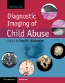 Product Diagnostic Imaging of Child Abuse