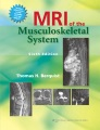 Product MRI of the Musculoskeletal System