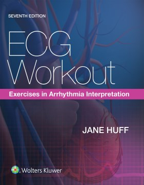 Product ECG Workout: Exercises in Arrhythmia Interpretation