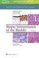 Product Biopsy Interpretation of the Bladder