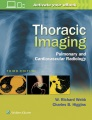 Product Thoracic Imaging