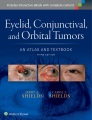 Product Eyelid, Conjunctival, and Orbital Tumors
