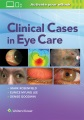 Product Clinical Cases in Eye Care