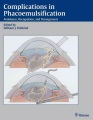 Product Complications in Phacoemulsification