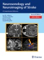 Product Neurosonology and Neuroimaging of Stroke