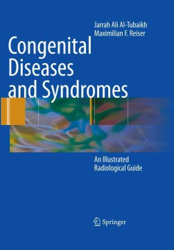 Product Congenital Diseases and Syndromes: An Illustrated Radiological Guide
