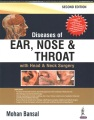 Product Diseases of Ear, Nose and Throat With Head and Nec