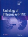 Product Radiology of Influenza a H1n1